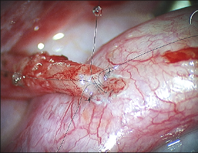 Microdot Technique Vasovasostomy